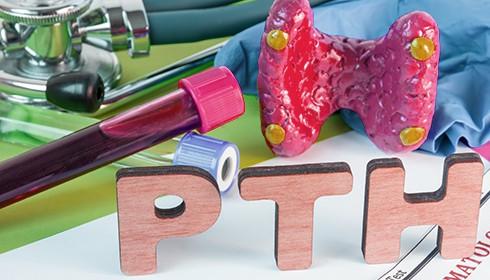διεγχειρητική-μέτρηση-Παραθορμόνης-Μαργαρίτη-Χειρουργός-Παραθυρεοειδών