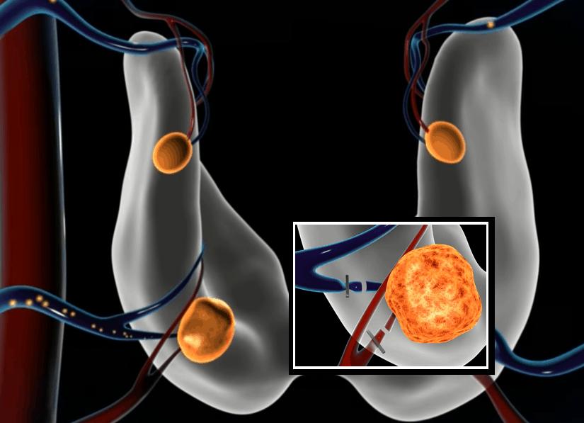 Παραθυρεοειδεκτομή-Θεοδώρα-Μαργαρίτη-Χειρουργος-Θυρεοειδούς-Παραθυρεοειδών