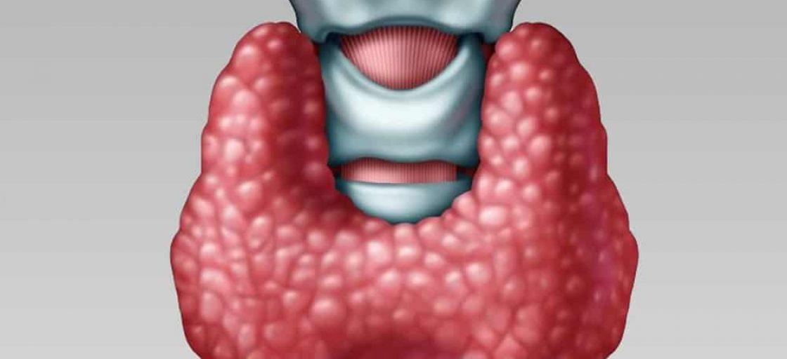 θυρεοειδιτιδα Hashimoto